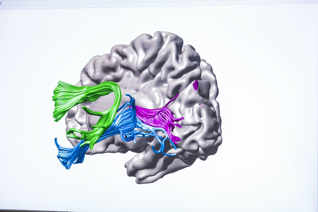 Similar Changes In Brains Of Patients >> Teachers Are Brain Engineers Uw Study Shows How Intensive