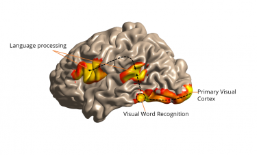 This illustration of the side view of the brain -- the front of the brain is at left -- shows how visual information is received in the back, and words are identified near the base, to be processed for understanding elsewhere.