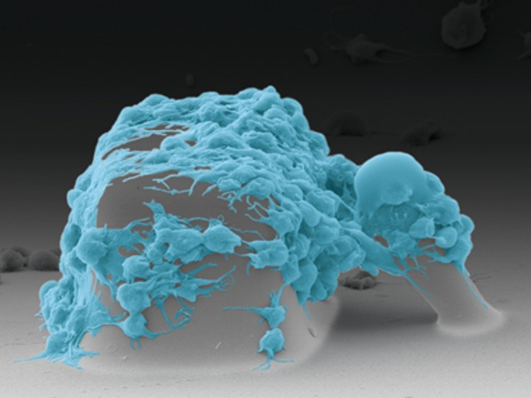 an image taken on a scanning electron microscope that shows platelets pulling on the post