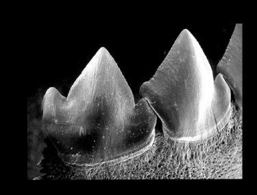 teeth interlocking