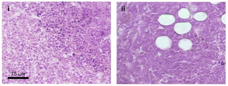Images of mouse tumor samples, showing how tumor cells grow abnormally if they've been treated with the anti-cancer drug Taxol.