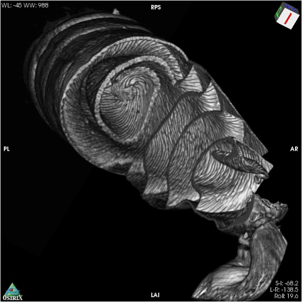 A scan shows the spiraling shark intestine in black and white