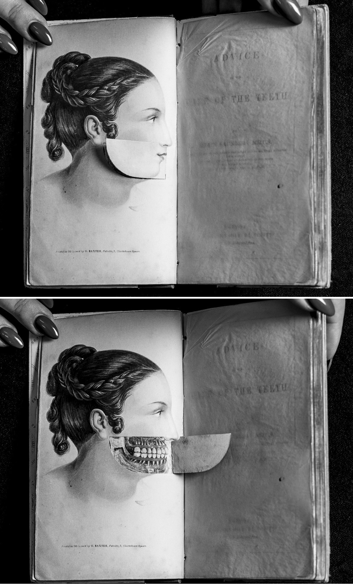 "Pages from Sir Edwin Saunders's 1837 book ""Advice on the Care of the Teeth,"" which featured care instructions for 19th century dentists."