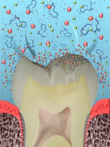 UW researchers have developed a way to cure cavities. (University of Washington)