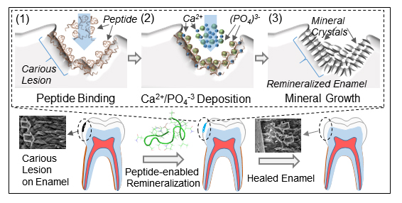Schematic illustration of peptide-guided biomimetic tooth repair technology (ACS Publications)