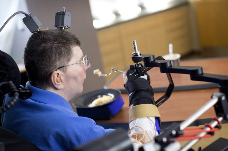 Un hombre cuadripléjico recupera el movimiento con implantes neurales