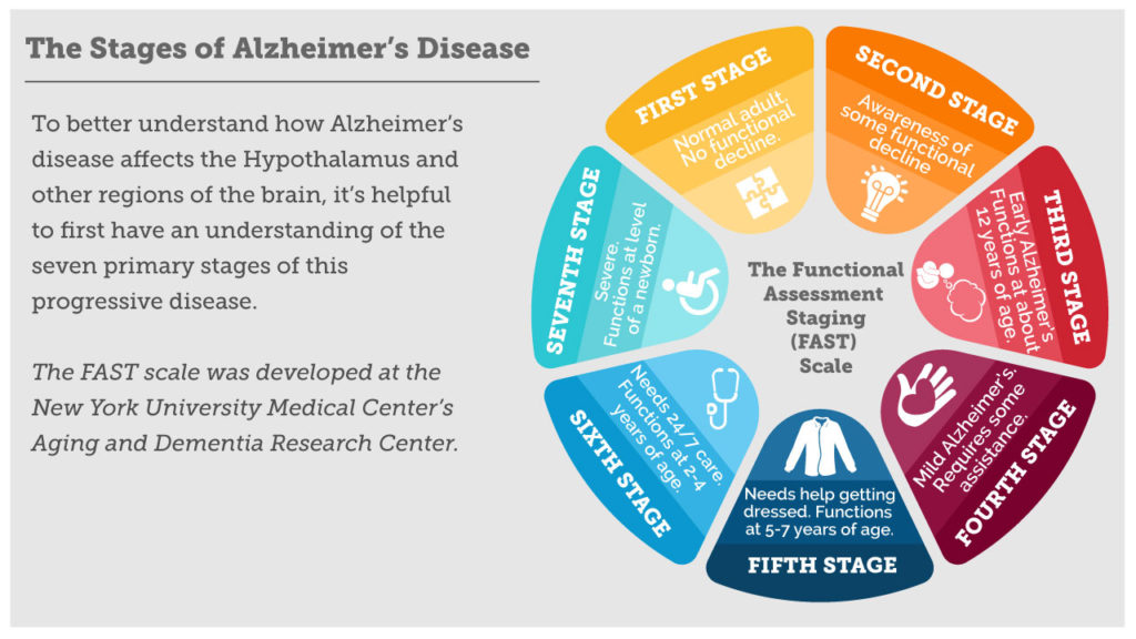 Stages of Alzheimer's