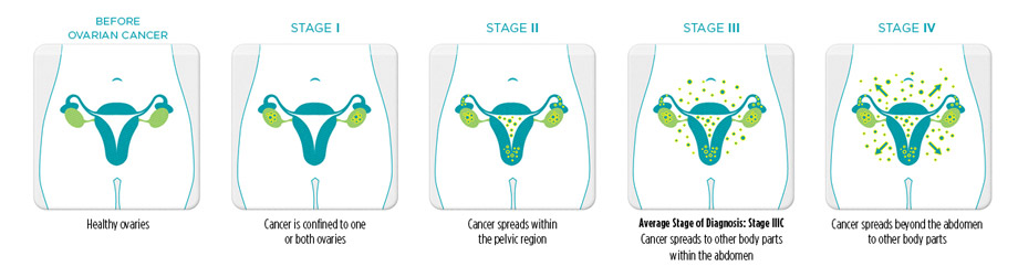 Ovarian cancer stages