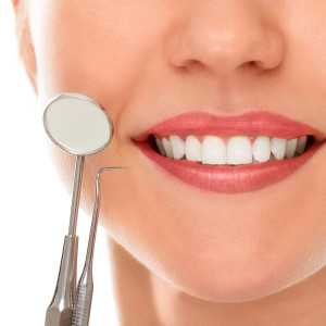 importance-of-dental-cleanings