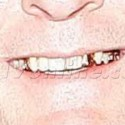 Charlie Sheen Flashes His Gold Teeth After Dinner